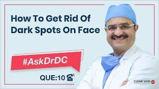 Get Rid Of Dark Spots On Face(चेहरे के काले धब्बों से छुटकारा पाएं)|#AskDrDc Ep 10 | (In HINDI)