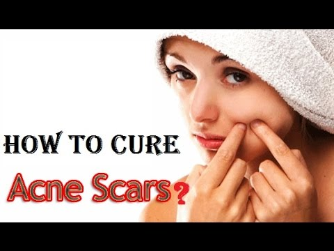 natural-treatment-for-acne-scars