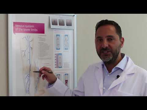 Prof. Dr. Barış Çaynak: Açık Ve Kapalı Varis Ameliyatları