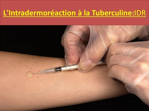 L'Intradermoréaction à la Tuberculine : IDR
