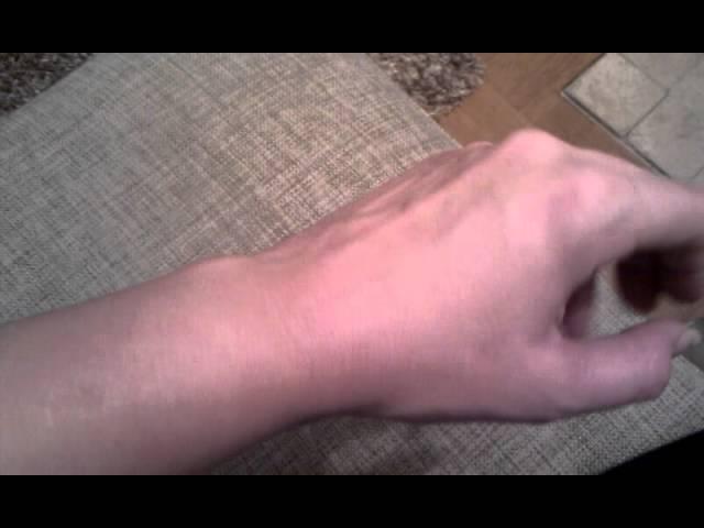 stora blodådror på händerna
