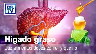 Hígado graso - Qué debes comer y qué no