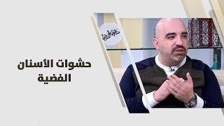 د. خالد عبيدات -  حشوات الأسنان الفضية