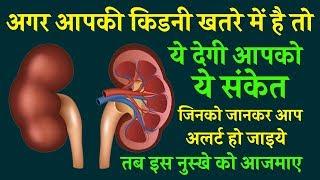 किडनी ख़राब होने से पहले शरीर देता है यह 14 संकेत पता नहीं चला तो मौत पक्की Kidney Failure Symptoms
