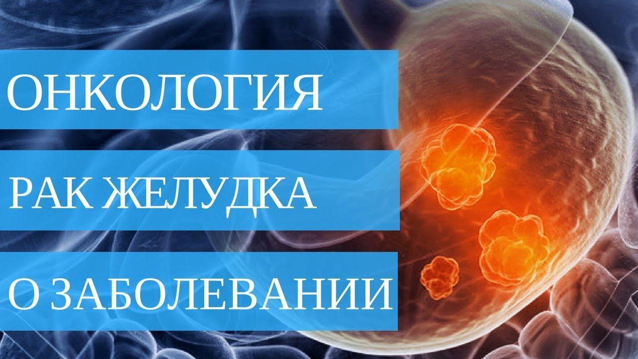 ВСЁ О РАКЕ ЖЕЛУДКА - симптомы, причины, лечение
