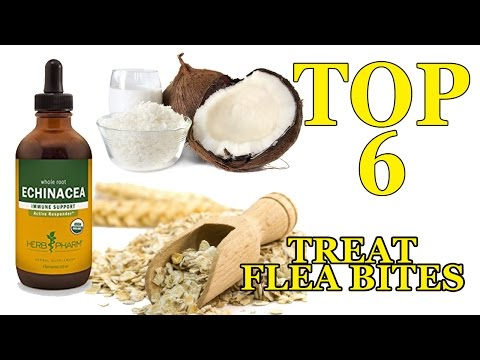 How To Treat Flea Bites On Humans - Top 6 Home Remedies