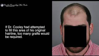 Hair Transplant Results - 3500 Grafts - FUT - Jerry Cooley MD