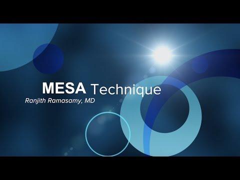 microsurgical-epididymal-sperm-aspiration-(mesa)