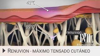 ¿Qué es Renuvion? ➡ Máximo tensado cutáneo en IML (Madrid)