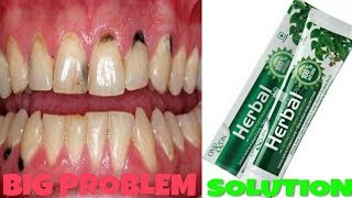 ON&ON HERBAL TOOTHPASTE