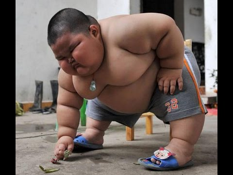 Extreme obesity | World's Fattest Kid | Fat children - YouTube