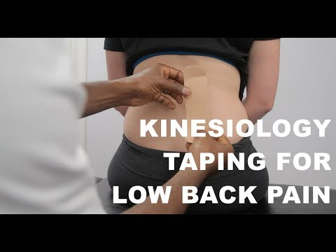 Kinesiology Tape For Low back Pain #ExplainMyPain PhysioChiroWellness