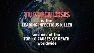 WHO: Tuberculosis is the leading infectious killer - Ministers declare commitment to end TB