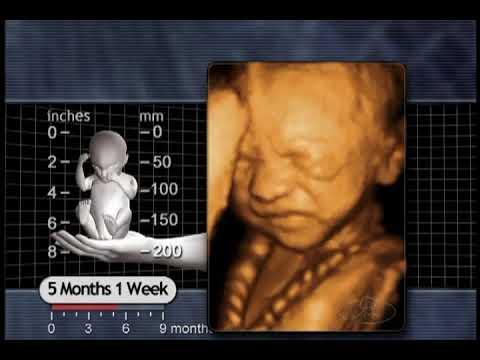 The Biology of Prenatal Development: 5 months