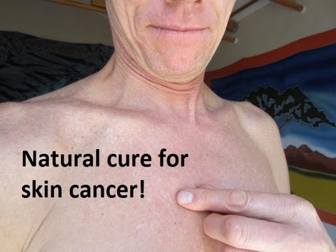 REAL Cure for Skin Cancer - Natural Remedy - Heal Your Skin Without Drugs or Dermatologists!