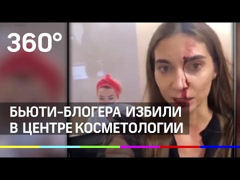 Известного блогера жестоко избили в Москве