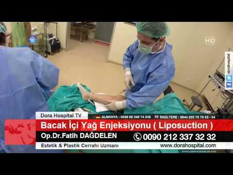 Bacak İçi Yağ Enjeksiyonu ( Liposuction ) Op.Dr.Fatih Dağdelen