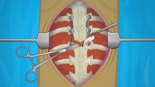 OPERATE NOW : SCOLIOSIS SURGERY | Play Scoliosis Surgery Games Online
