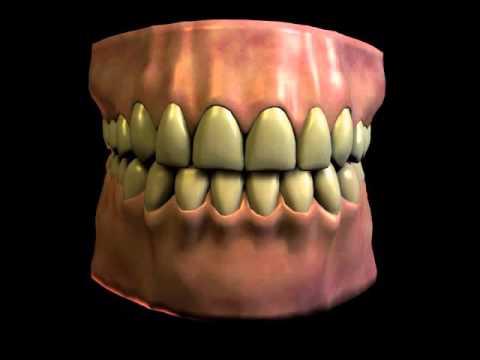 Dental Bruxism (Teeth Grinding)