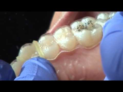 Ortho Clear Collection Clear Aligner Hole Punch bumpers