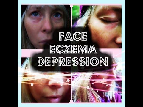 Face Eczema DEPRESSION