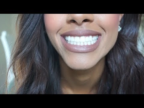 My Dental Implant Surgery Experience: PART ONE | My Story + Tips For You! | Mariah Navit