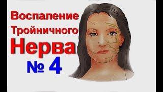 Воспаление тройничного нерва. Невралгия–тройничный нерв лечение народными средствами № 4