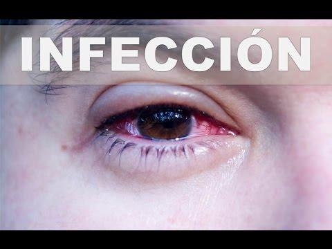 ☞ Remedios caseros para las infecciones oculares – Como aliviar la infección en el ojo