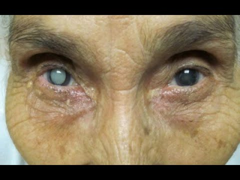 ★ Лечение катаракты без операции. Как избавиться от катаракты навсегда. Капли от катаракты глаз.