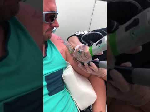 Half Sleeve Tattoo Removal by Vanish Laser Aesthetics - Longview ...