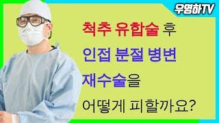척추 유합술 후 재수술을 피할 수 있는 방법은 없나요?…