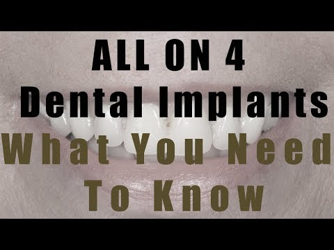 What You Need To Know About All on 4 Dental Implant Treatment incl Costs