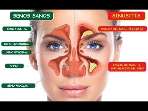 Mezcla Estos Dos Ingredientes Y Dile ADIÓS A Tu Sinusitis, Flema, Rinitis Y Más