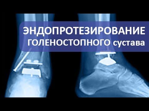 Ортопед - обсуждение