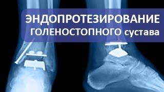 Эндопротезирование голеностопного сустава. Операция эндопротезирования голеностопного сустава.(Требуется операция эндопротезирования голеностопного сустава? https://goo.gl/rgO2Hr Врач травматолог ортопед Армен..., 2016-10-30T18:14:20.000Z)