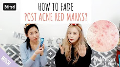 hqdefault - Best Product For Post Acne Red Marks