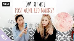 hqdefault - Will My Acne Red Marks Go Away