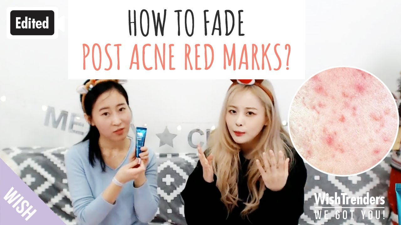 Edited How To Fade Post Acne Red Marks Post Acne Skin Care Tips My Acne Story Wwgy Youtube