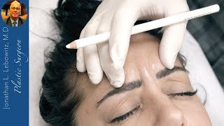 Botox: Forehead/Eyes in a Young Woman For A More Youthful Appearance At Lebowitz Plastic Surgery, NY