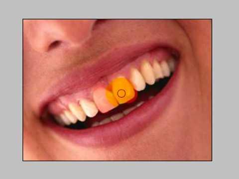Como Clarear Os Dentes Com O Photoshop Cs2 Ou Cs3 Youtube