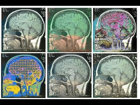 How does the brain change with age? Part #1 Cam-CAN project overview