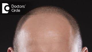How to treat Diffuse Alopecia in young men? - Dr. Aruna Prasad