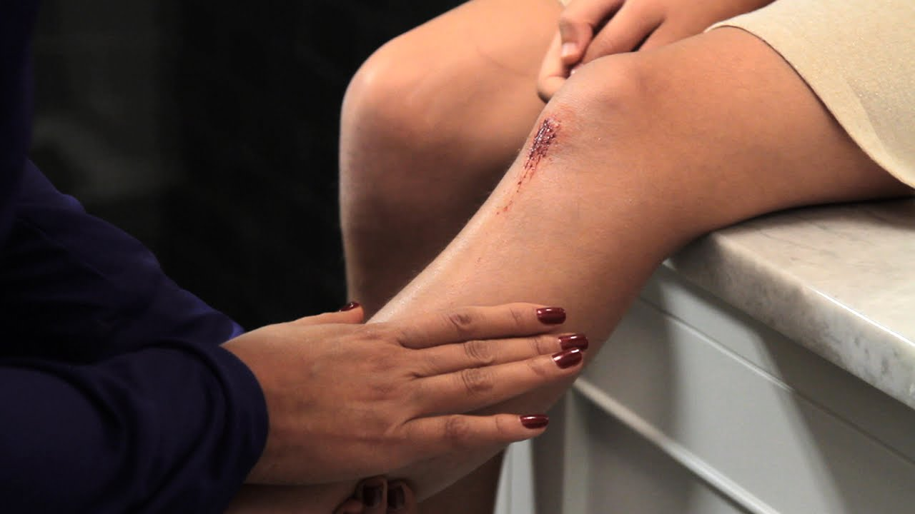 Proper wound care: How to minimize a scar