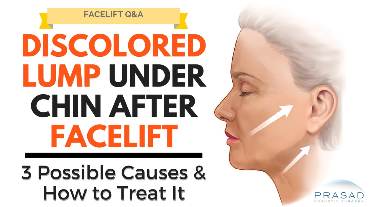 Lump Under the Chin During Facelift Healing - Possible Causes and