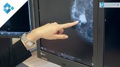 Brustdiagnostik - Knoten frühzeitig erkennen