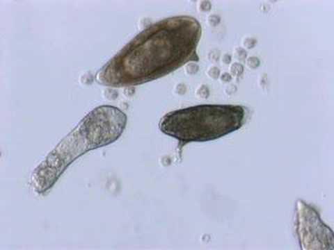 Schistosoma  mansoni mother sporocyst and eggs
