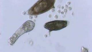 Schistosoma  mansoni mother sporocyst and eggs