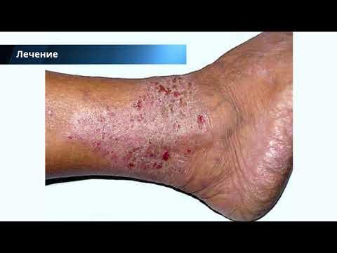 Варикозный дерматит нижних конечностей: лечение, причины, симптомы, фото с описанием