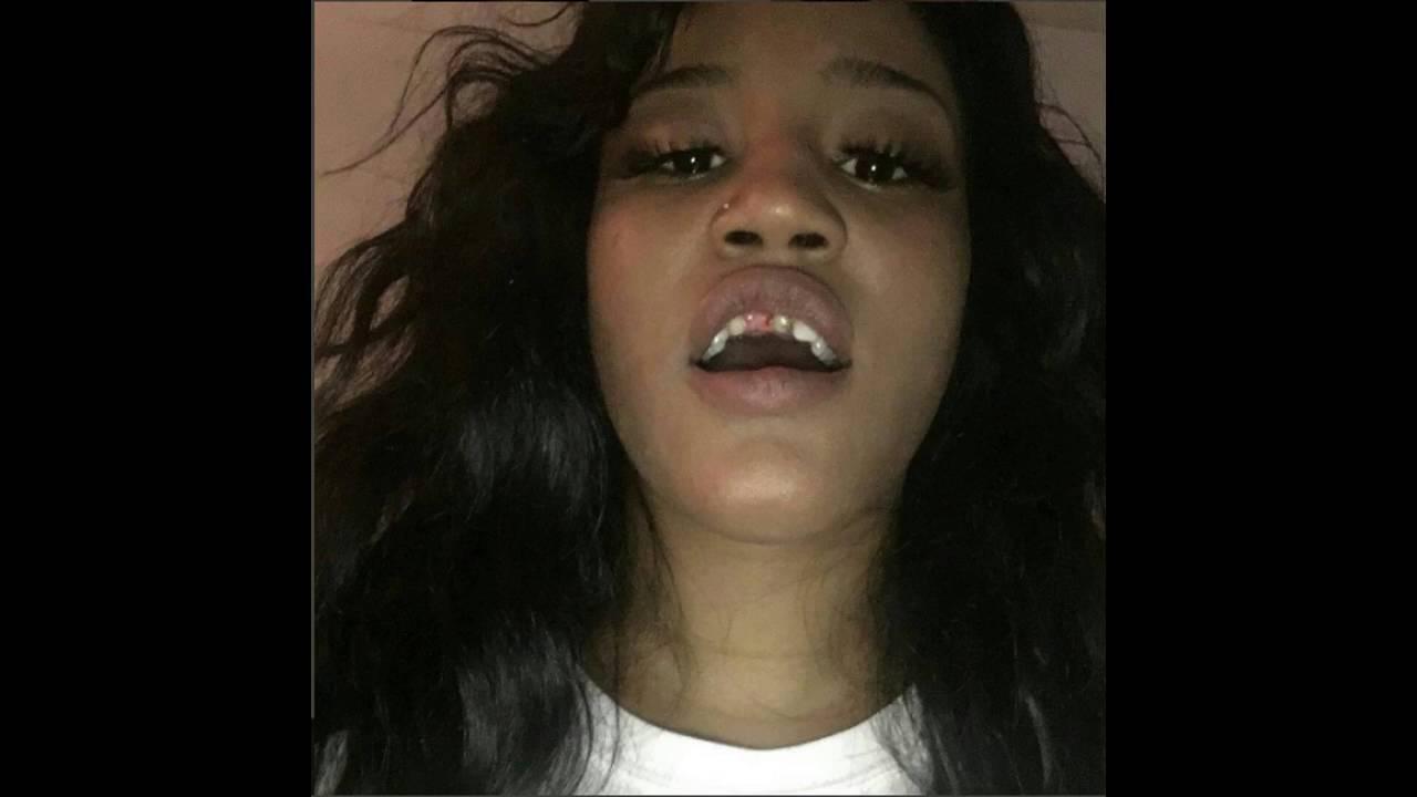 When Get False Teeth