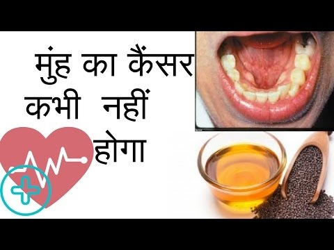 Muh Ke Cancer Ka Ilaj | मुंह का कैंसर | Mouth Cancer Symptoms in Hindi